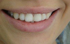 фотография Зубные украшения