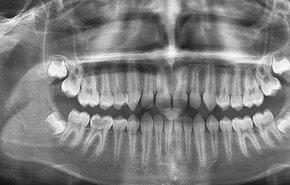 фотография Рентгенография зубов