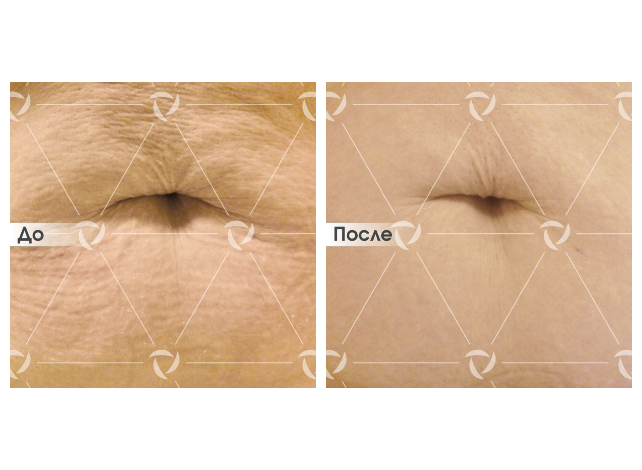 Как увеличить грудь без операции и без упражнений