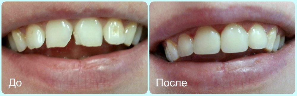 фотография Стоматологической клиники Приваблива усмішка