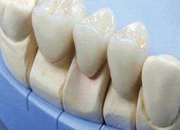 фотография Восковое моделирование зубов
