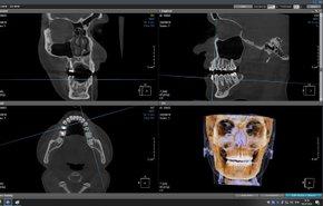 фотография Рентген головы