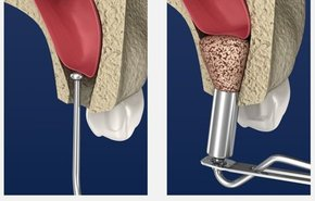 фотография Операции в стоматологии