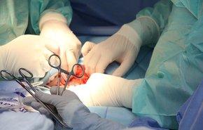 фотография Операции на легких